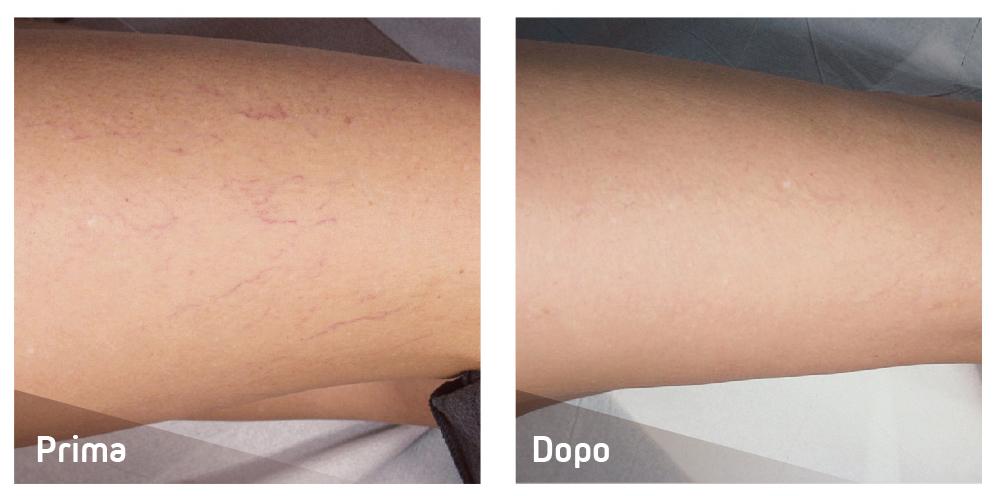 Laser per capillari - casi clinici